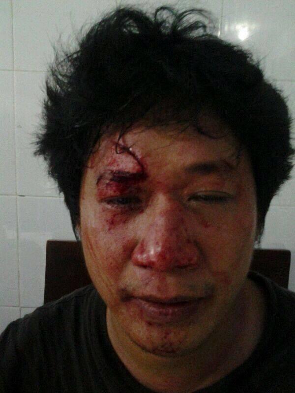 Kronologi Peristiwa Penyerangan Kegiatan Zikir & Do'a Asyura di Makassar
